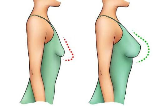 ماموپلاستی افزایشی با ایمپلنت